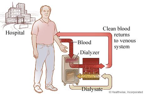 The process of hemodialysis