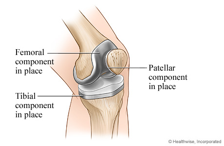 Completed knee replacement surgery