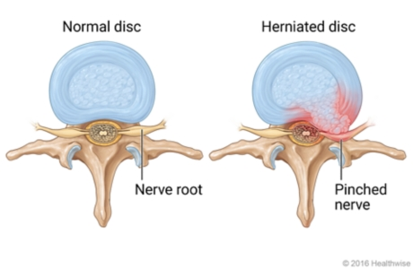 Top view of normal disc with healthy nerve root and top view of herniated disc with pinched, inflamed nerve