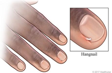 Hangnail