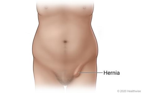 Bulge of inguinal hernia in groin area