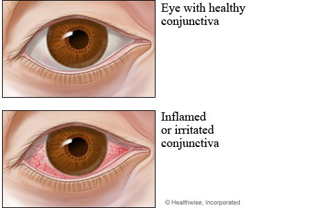 Healthy conjunctiva compared to conjunctivitis (pinkeye)