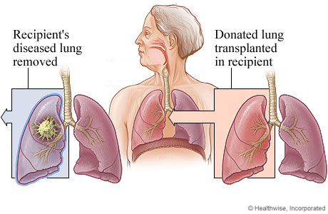 Picture of lung transplant