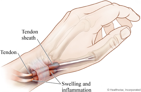 Tendon affected by de Quervain's tenosynovitis