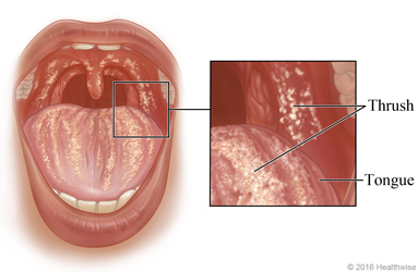 Thrush in the mouth, with close-up of thrush on tongue and inside of cheek
