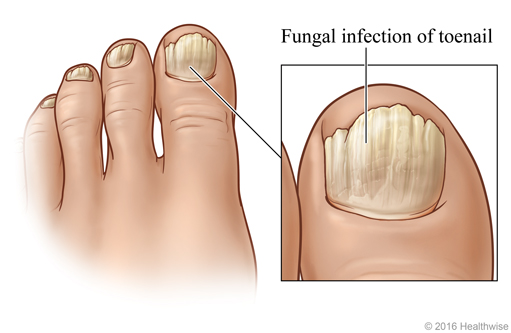 Toenails showing typical symptoms of the most common fungal nail infection, with close-up of big toe