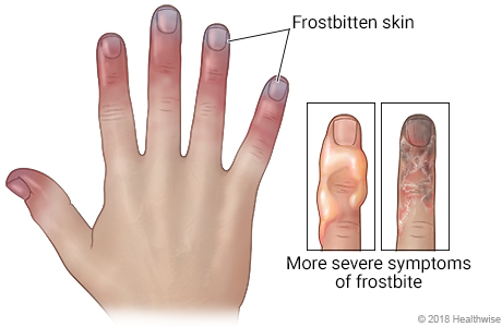 Hand with frostbitten fingers, and detail of fingers with blisters or black skin