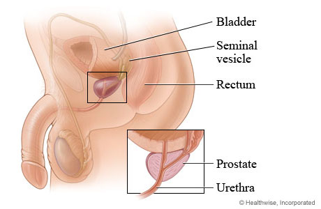 Prostate gland and its location in the body