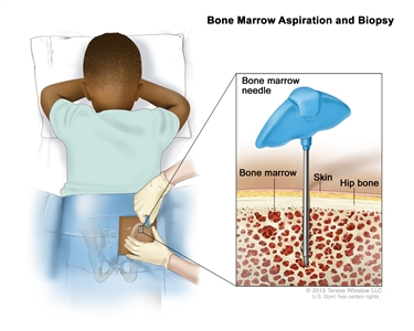 Bone marrow aspiration and biopsy; drawing shows a child lying face down on a table and a bone marrow needle being inserted into the right hip bone. An inset shows the bone marrow needle being inserted through the skin into the bone marrow of the hip bone.