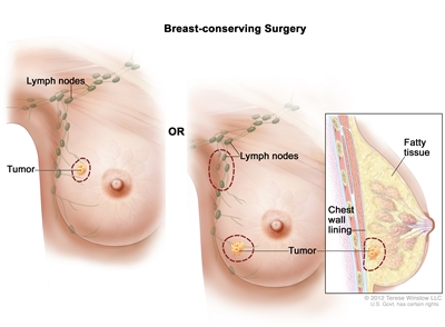 Breast-conserving surgery; the drawing on the left shows removal of the tumor and some of the normal tissue around it. The drawing on the right shows removal of some of the lymph nodes under the arm and removal of the tumor and part of the chest wall lining near the tumor. Also shown, is fatty tissue.