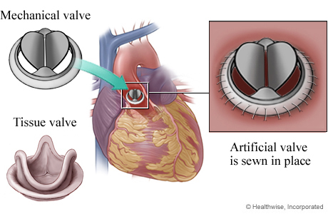 Mechanical valve and tissue valve, showing mechanical valve in heart, with detail of valve sewn in place.
