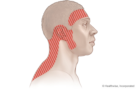 Picture of possible areas of pain with tension headache