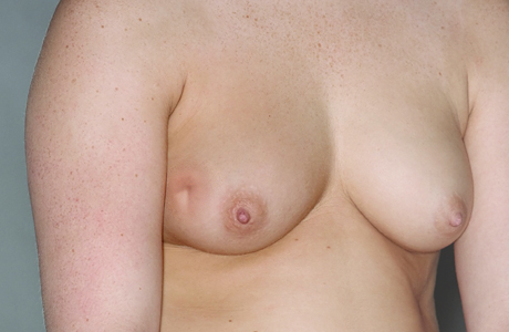 Breast after lumpectomy