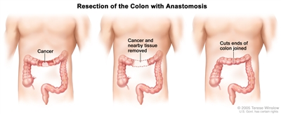 Three-panel drawing showing colon cancer surgery with anastomosis; first panel shows the area of the colon with cancer, middle panel shows the cancer and nearby tissue removed, last panel shows the cut ends of the colon joined.